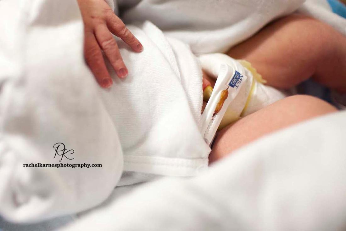newborn-umbilical-cord-clamp-in-hospital